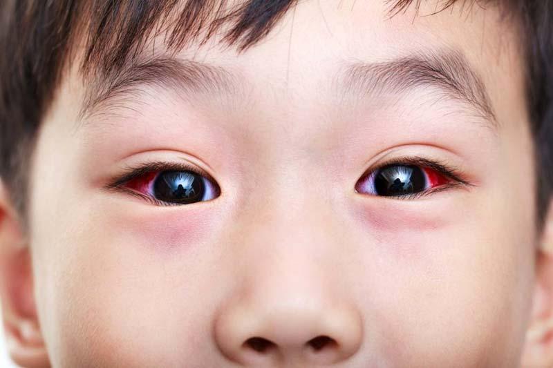 8 Whys Your Toddler Blinking Hard (Complete List) | Ethissa